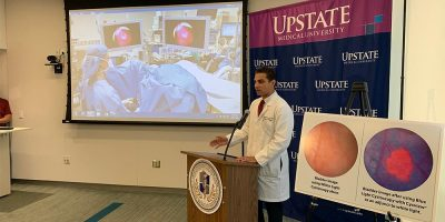 Upstate shines light on bladder cancer