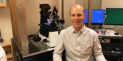 Upstate professor's research makes ground-breaking connections between abnormalities in th…