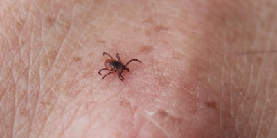 Where ticks bite: Check your thigh first, Upstate survey indicates