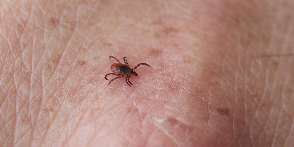 Out of 722 deer tick submissions that were found attached to a human, obtained from March to July, 15.8% were reported to be found on thigh. The next top three locations were around the waist (7.6%), stomach (7.6%) and groin (6.6%).