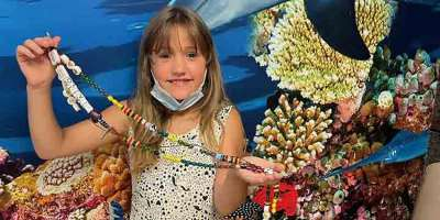 Beads of Courage program expands to pediatric burn patients