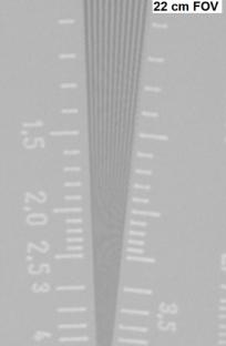 The Image Intensifier (II)   Radiology  SUNY Upstate Medical
