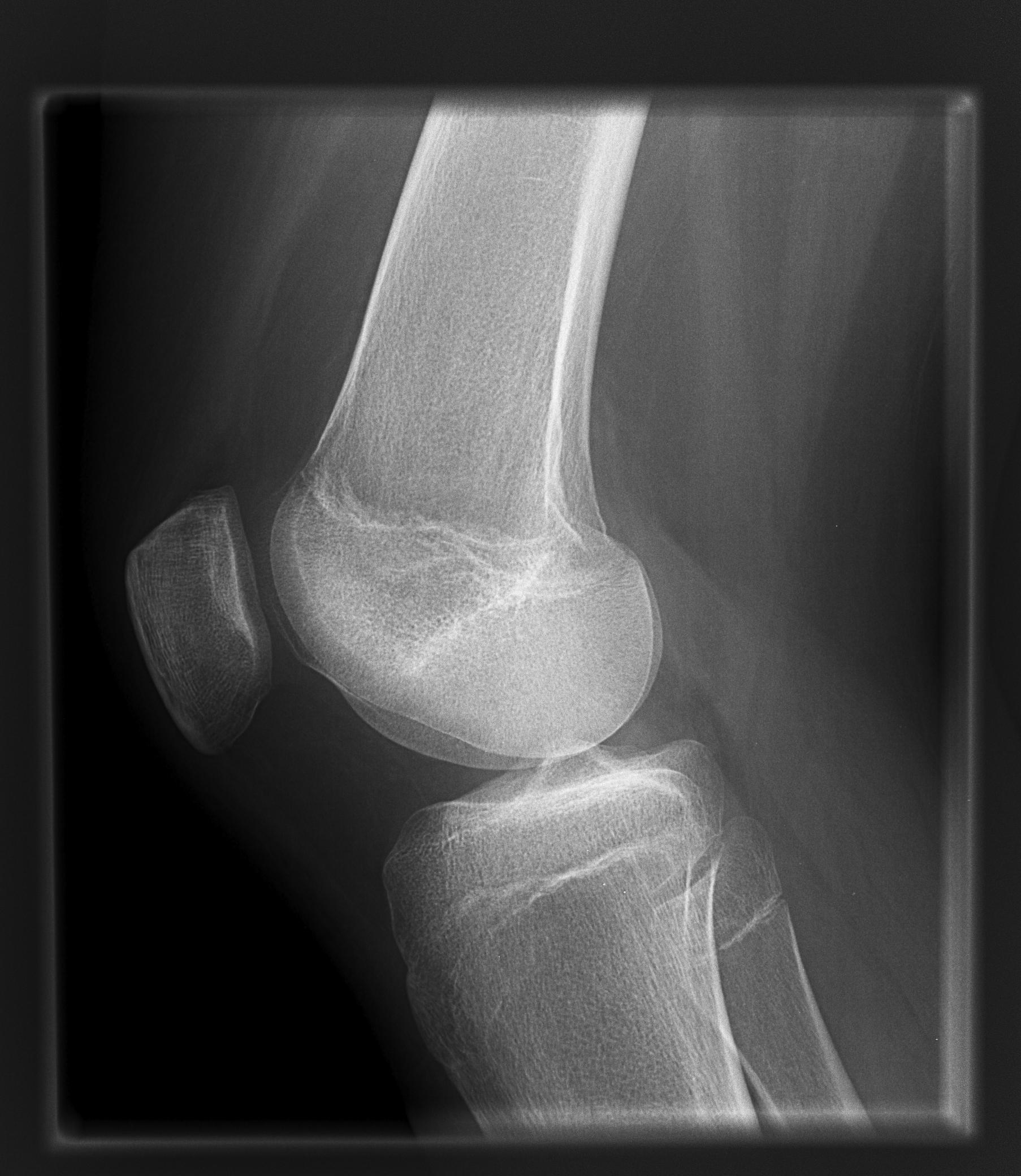 Image Processing   Radiology   SUNY Upstate Medical University