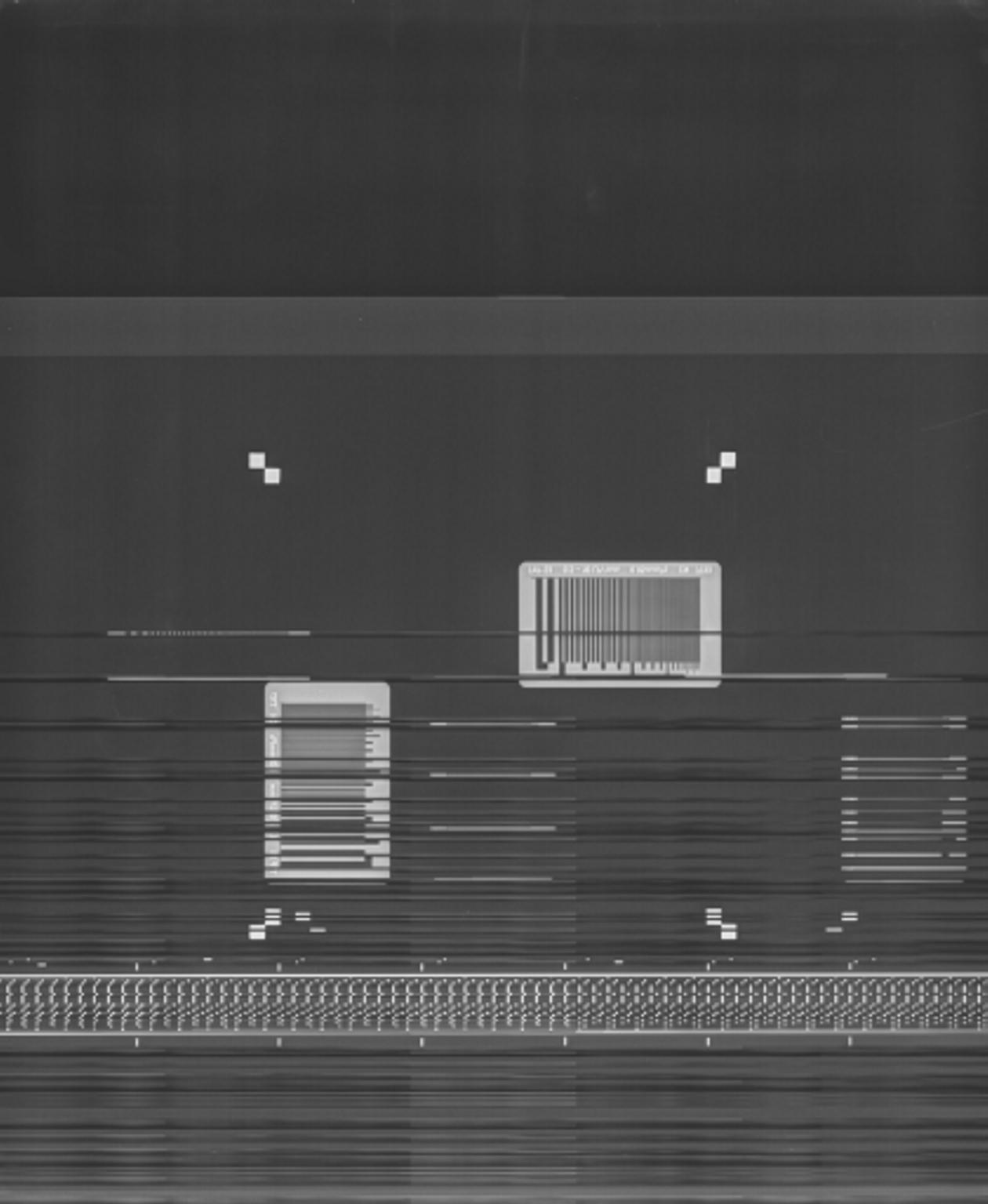 Digital Radiography Image Artifacts | Radiology | SUNY Upstate ...