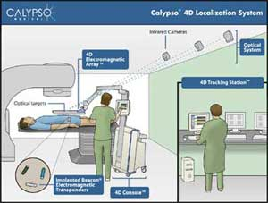 Calypso 4D Localization SystemóGPS for the Body