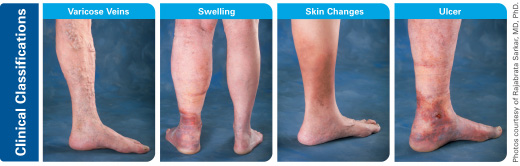 2ff05f3063 Chronic Venous Insufficiency (CVI) | Department of Surgery | SUNY ...