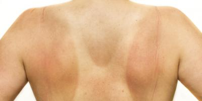 5 things to do to treat a sunburn